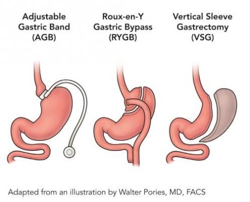 جراح چاقی و متابولیک | فلوشیپ جراح لاپاراسکوپی تهران | جراح لاغری