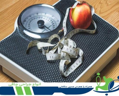 انواع جراحی چاقی - دکتر شهاب شهابی