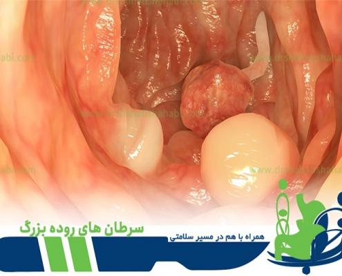 سرطان های روده بزرگ